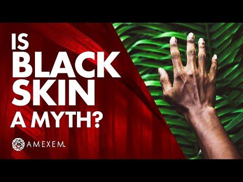 "Black Ethnicity: ""Black Epidemic"" (Chap. 1)"