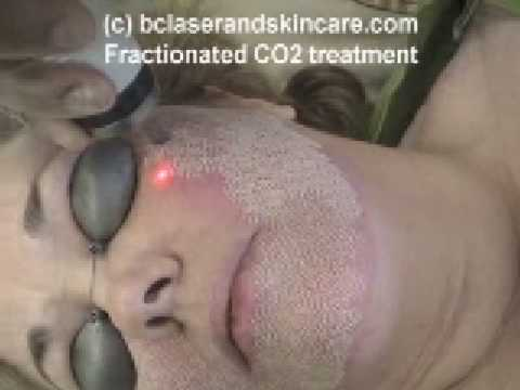 Laser Skin Care Treatment