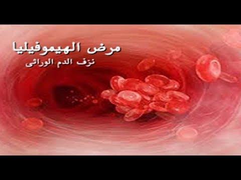 مرض الهيموفيليا يهدد حياة المرضى ومبلغ العلاج خيالي