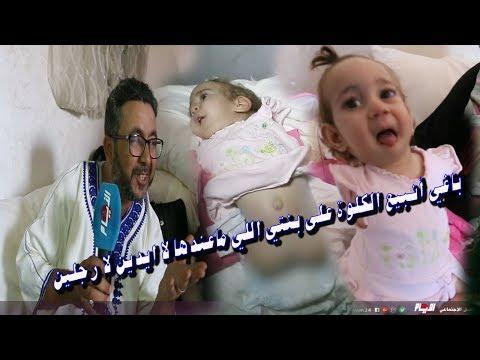 ولدت بدون أطراف..والد الطفلة سندس يعرض كليته للبيع من أجل علاجها