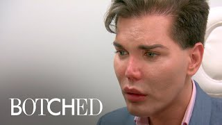 "Dr. Paul Nassif Says Patient's Nose ""Could Fall Off"" 