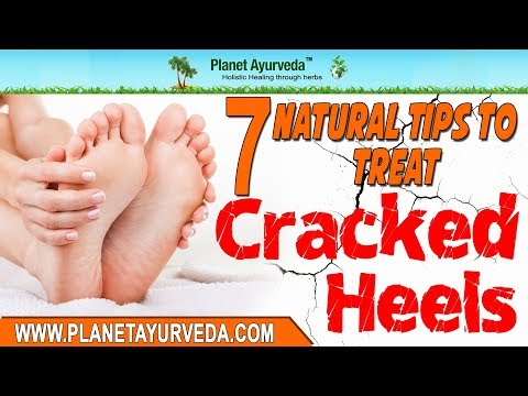 7 Natural Tips To Treat Cracked Heels At Home - Skin Care Treatment