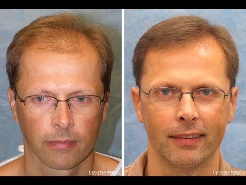 Hair Transplant Results: Bernstein Medical Patient OXZ
