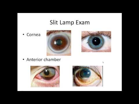Basic Eye Exam   Part II (Slit Lamp Exam)