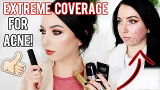 MY TOP FOUNDATIONS FOR ACNE & TEXTURED SKIN! Full/Extreme Coverage Makeup | Fair Skin