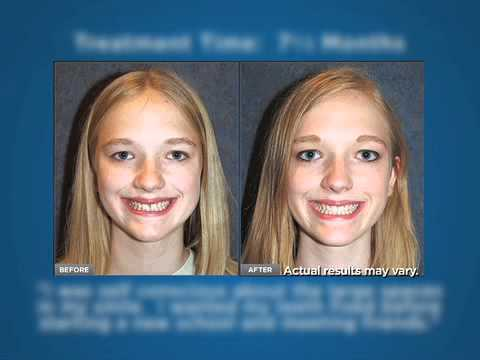 Studio Dental: With Invisalign, all you'll need to adjust to is your smile