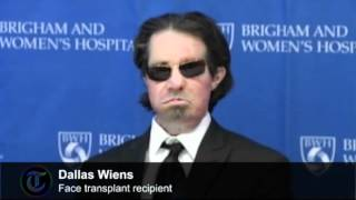 Full face transplant patient speaks out one year on