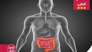مستشارك الطبى |تشخيص وعلاج مرض التيفويد والقولون -