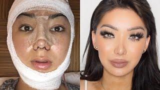 My Facial Plastic Surgery Story! | Dragun