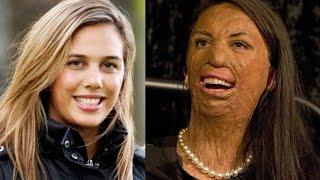 Mulher com 60% do corpo queimado é pedida em CASAMENTO AMOR VERDADEIRO