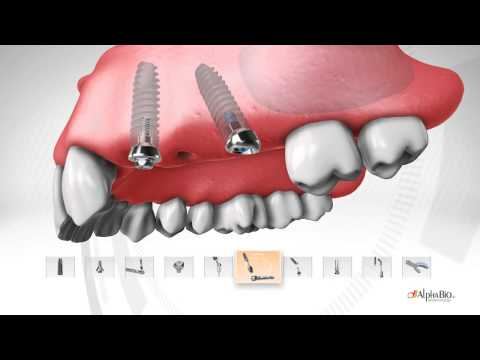 video Implant Dentar de la 250€