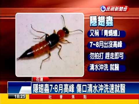 花蓮鳳林隱翅蟲出沒 體液濺臉恐毀容-民視新聞