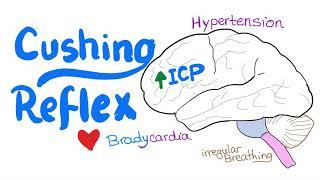 Cushing Reflex (intracranial hypertension)