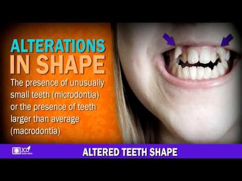 Teeth Shape, Dental 026