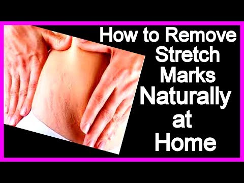 How to Remove Stretch Marks Naturally at Home | Get Rid of Stretch Marks Fast