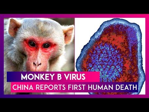 Monkey B virus: China reports first human death