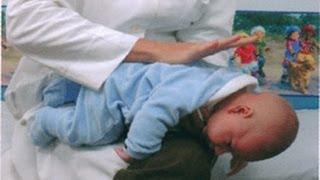 Primeros auxilios por atragantamiento en Bebés