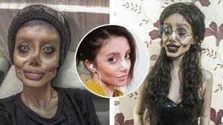 Sahar Tabar, la bufala della chirurgia estetica per assomigliare ad Angelina Jolie - Notizie.it
