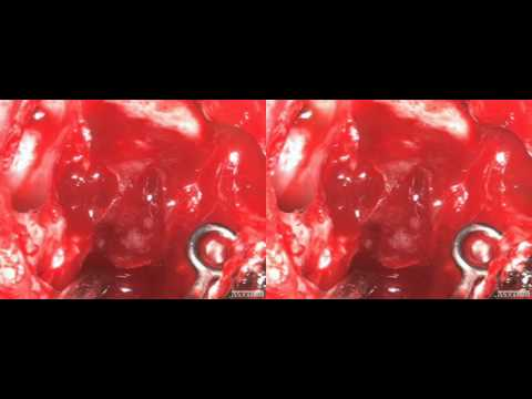 visionsense 3D endoscopic Pituitary