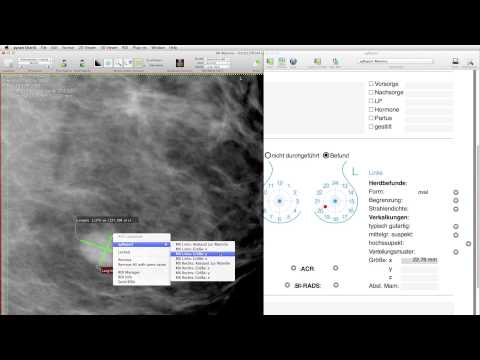 Reporting with aycan OsiriX PRO