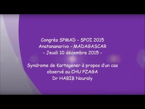 Syndrome de Kartagener à propos d'un cas observé au CHU PZAGA Mahajanga Dr HABIB Nouraly