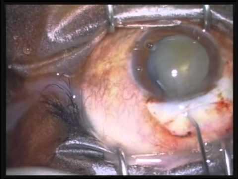 MSICS (white cataract)