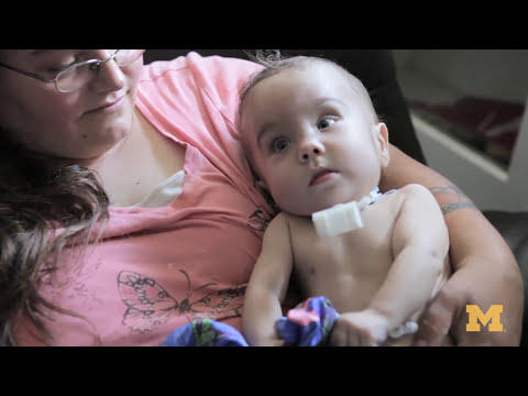 1st time 3D Printed Medical Device Saves Baby's Life