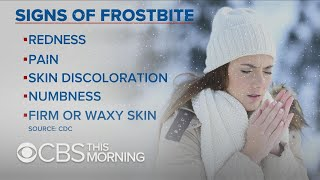 How to protect yourself in dangerous freezing weather