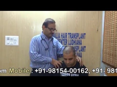 FUE hair transplant done by Dr D. S. Walia